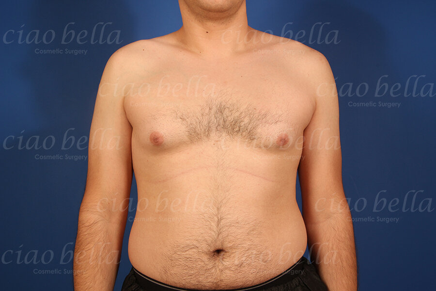 Male Breast (Gynecomastia) image