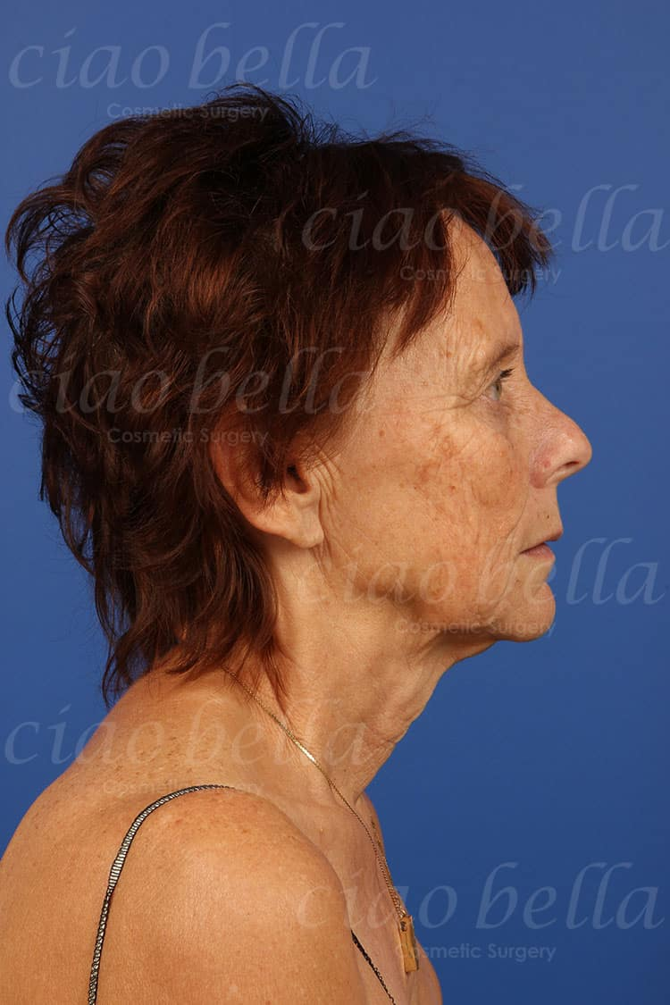 Cosmetic Procedure Gallery - Before Image