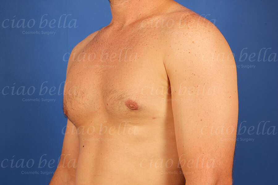 Cosmetic Procedure Gallery - After Image